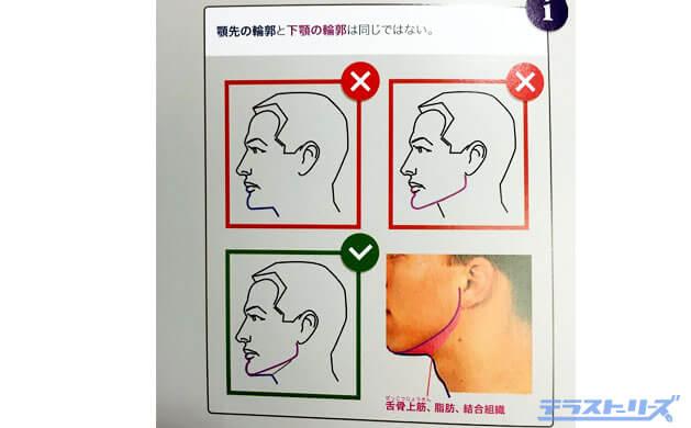 顎の輪郭線